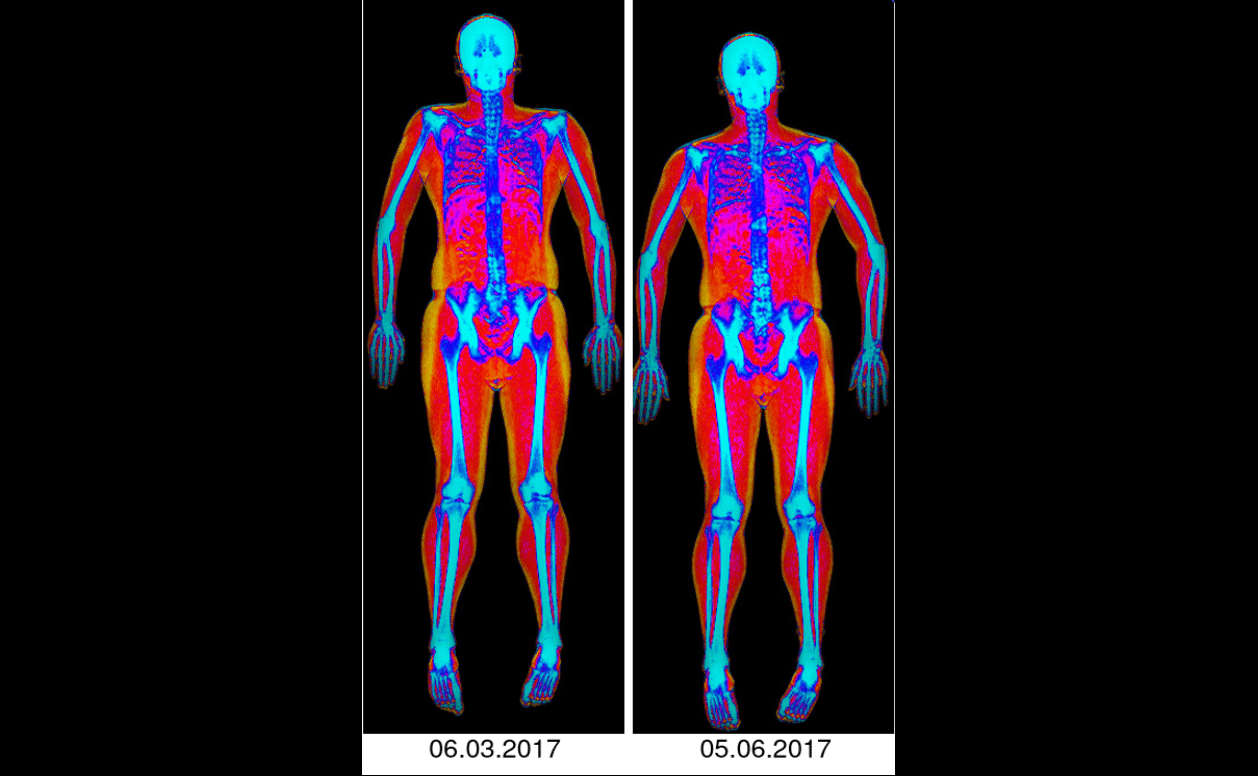 Body Recomp before and after DEXA