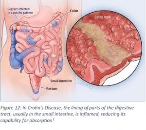 Vitamin D Crohn's Disease