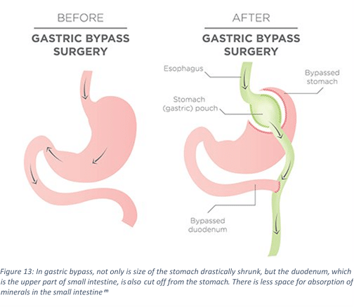 Vitamin D Gastric Bypass