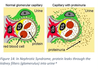 VItamin D Nephrotic Syndrome
