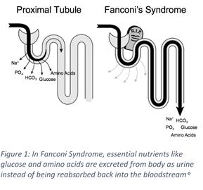 Vitamin D Fanconi Syndrome