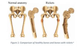 Healthy Bones vs Rickets Vitamin D