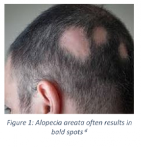 Vitamin D Alopecia