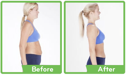 Wonder Core Smart Before and After Pictures Women