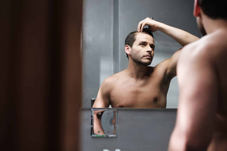 understanding male pattern baldness